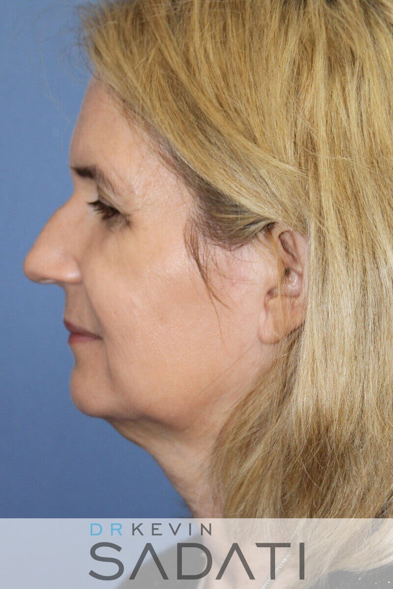 Newport Beach Septorhinoplasty Before Rhinoplasty