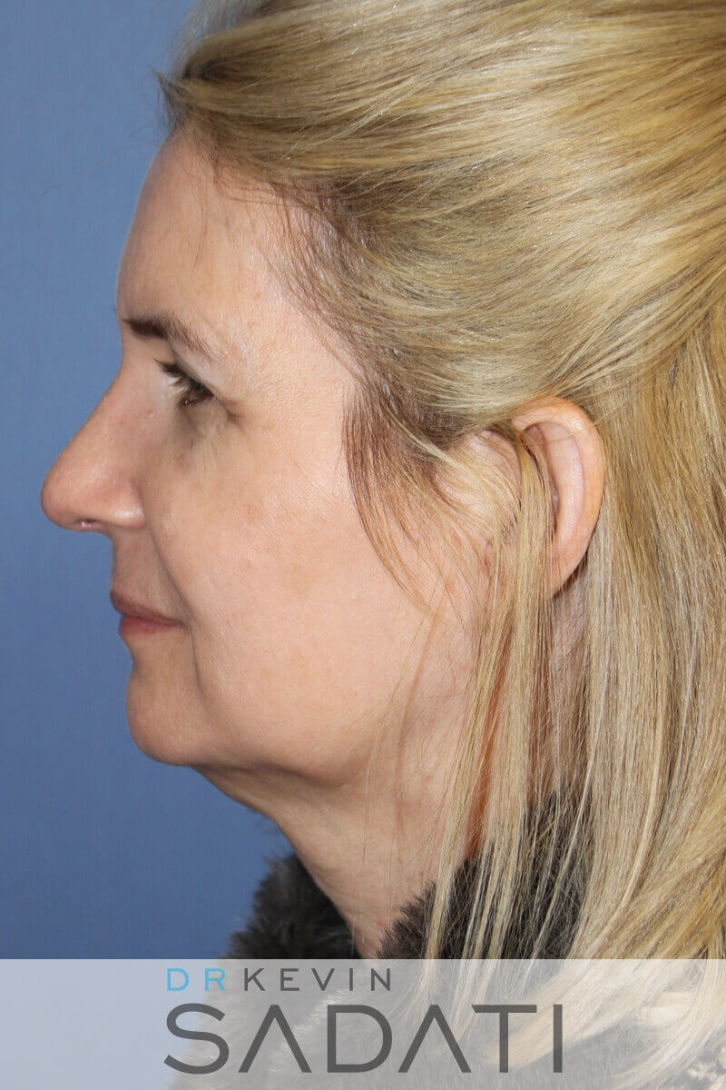 Newport Beach Septorhinoplasty After