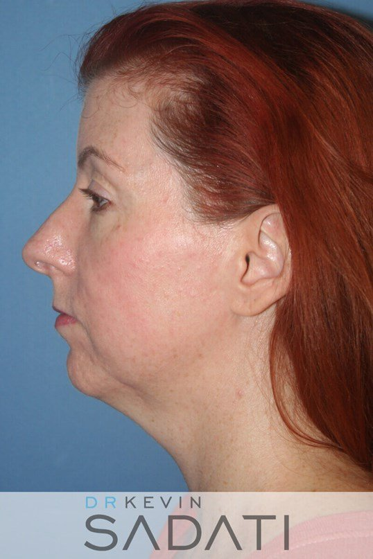 Female Rhinoplasty Left View Before