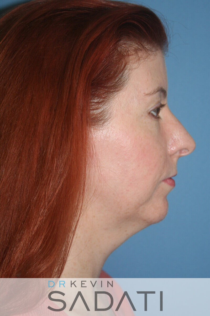 Female Rhinoplasty Right View Before