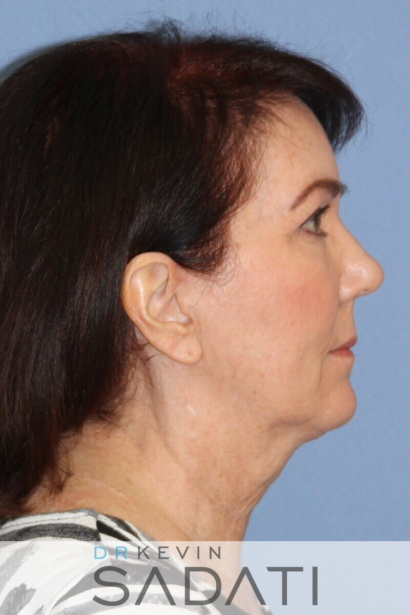 Female Facelift Right View Before Facelift