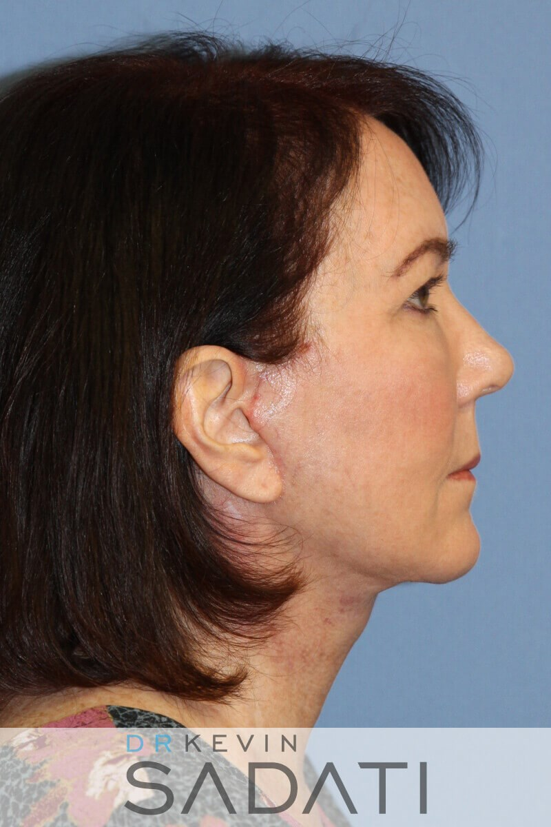 Female Facelift Right View After Facelift