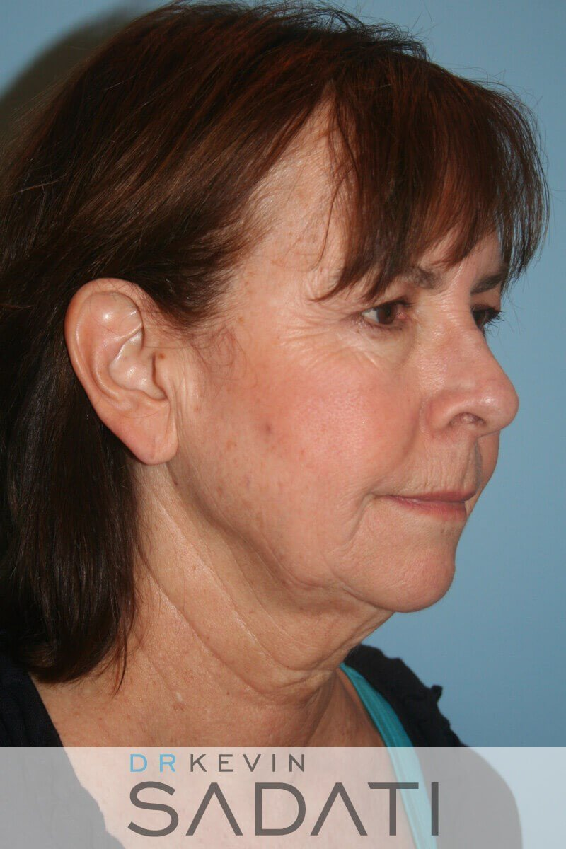 Female Facelift Oblique View Before