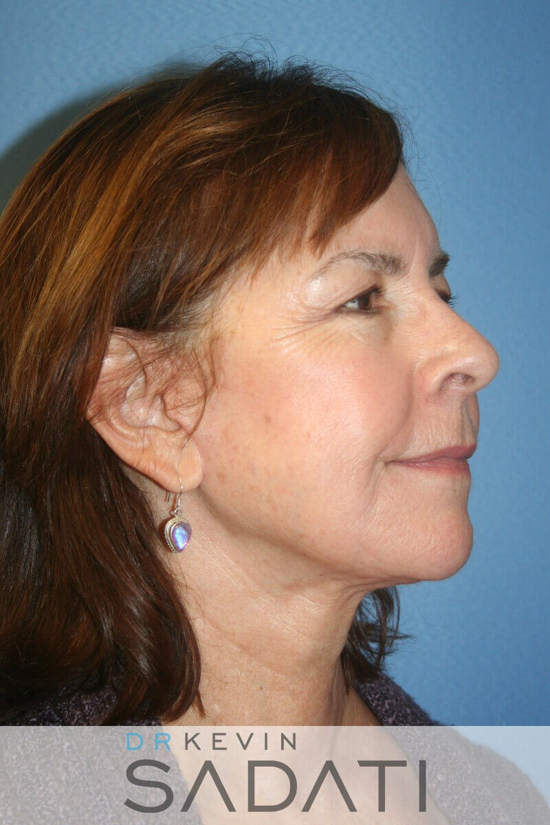 Female Facelift Oblique View After