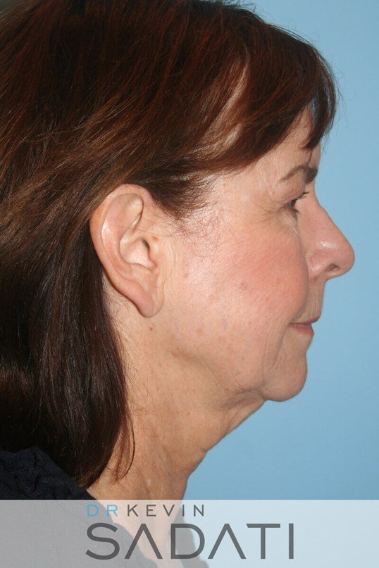 Female Facelift Right View Before