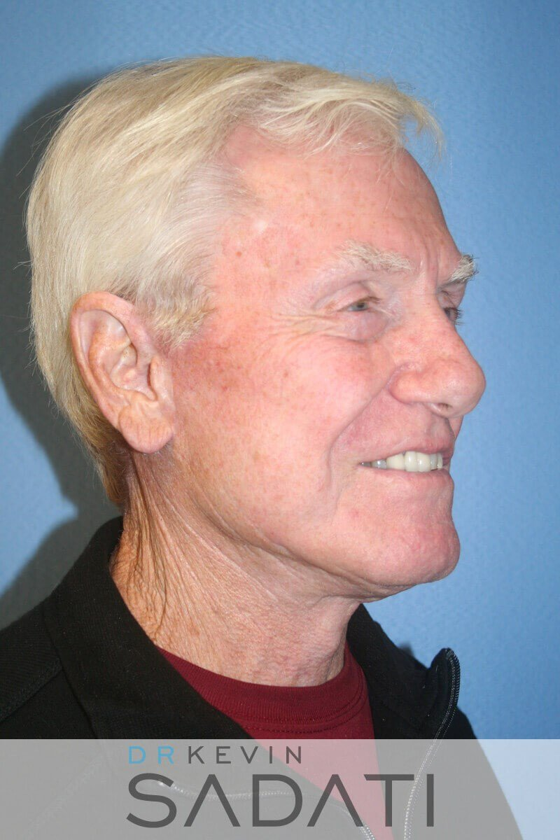 Male Facelift Orange County After
