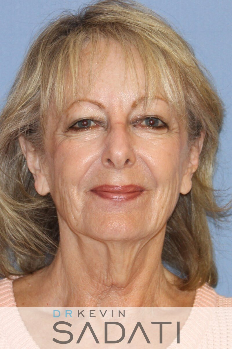 Female Facelift Front View Before