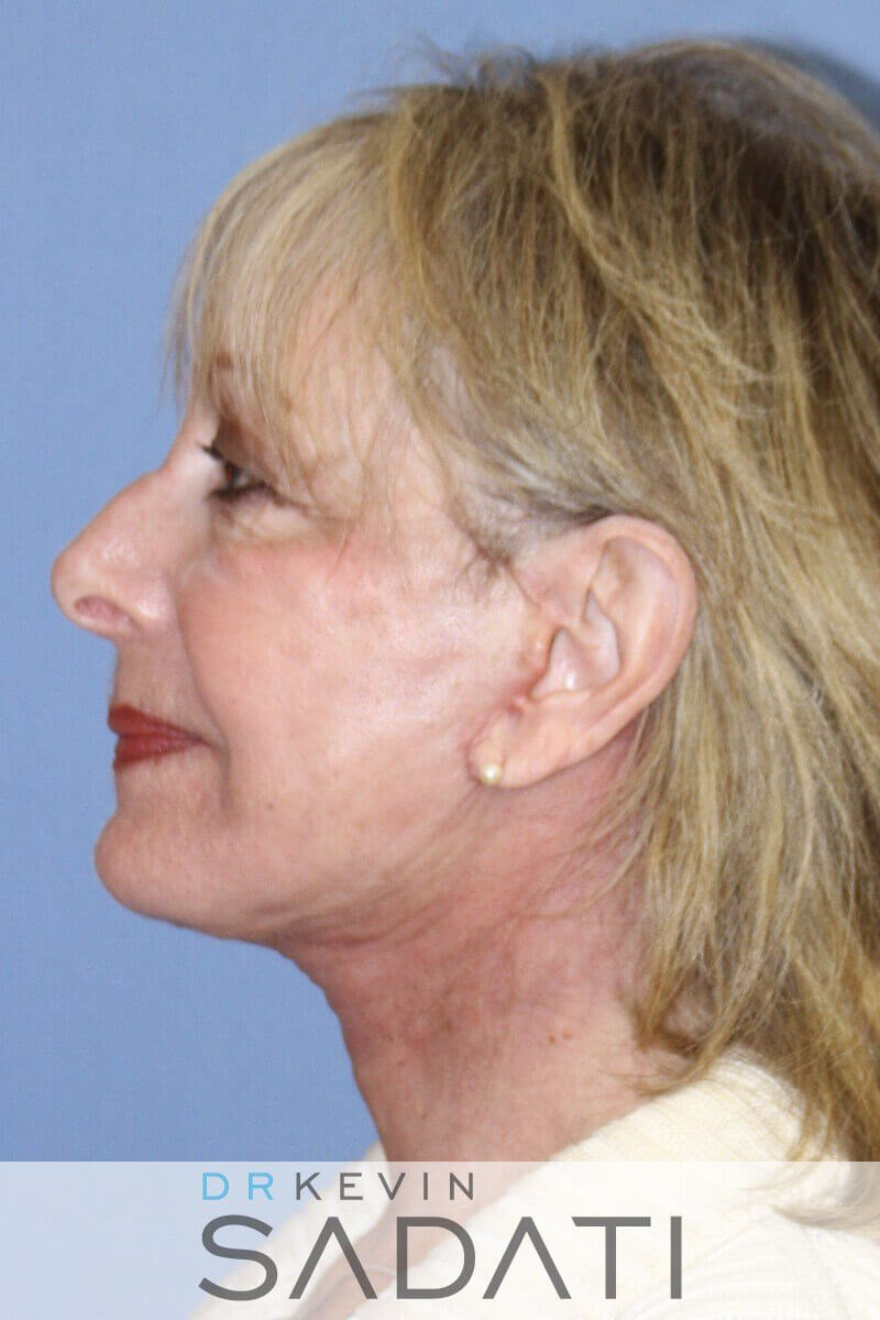 Female Facelift Left View After