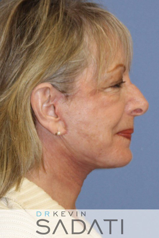 Female Facelift Right View After