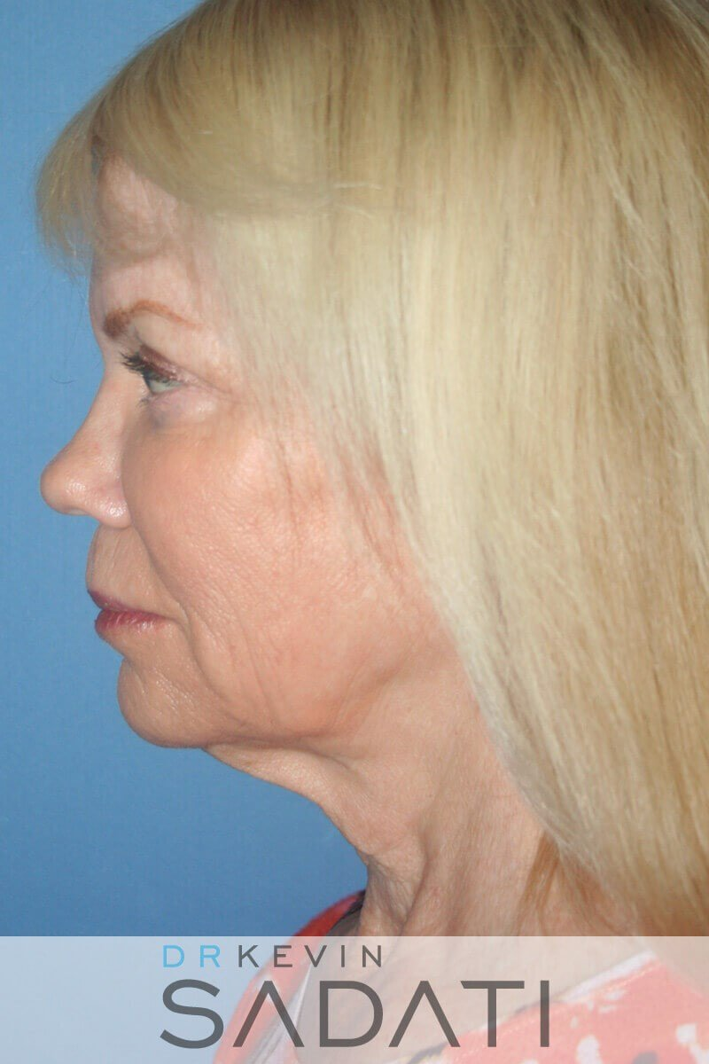 Female Facial Rejuvenation Before