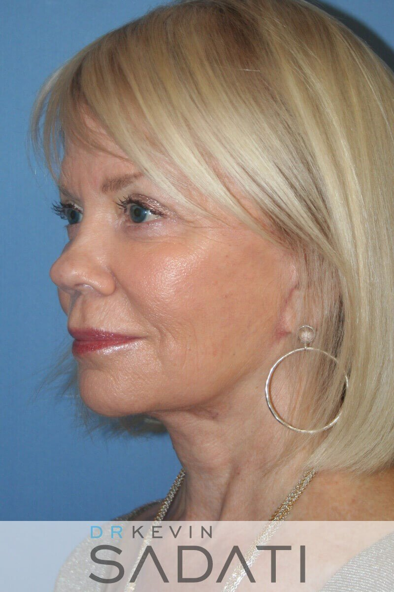 Female Facial Rejuvenation After