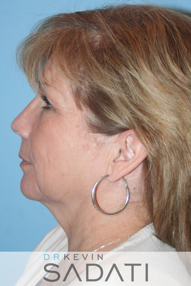 Female Face and Neck Lift Before