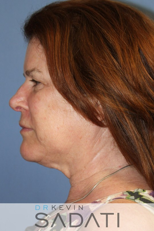 Orange County Facelift - Left Before