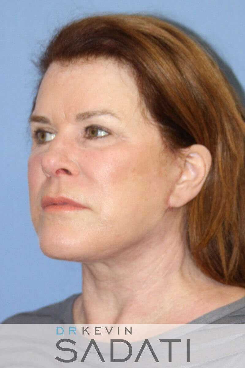 Orange County Facelift Oblique After