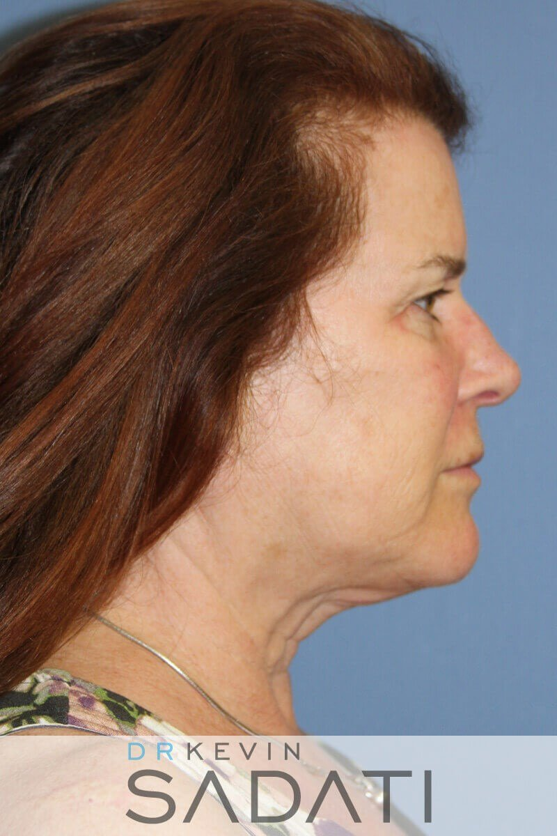 Orange County Facelift - Right Before