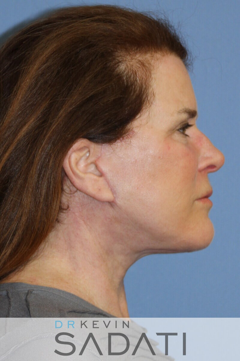 Orange County Facelift - Right After