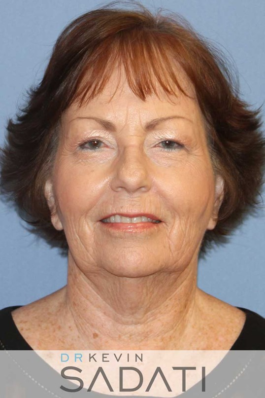 Newport Beach Facelift with Upper and Lower Eyelid Surgery