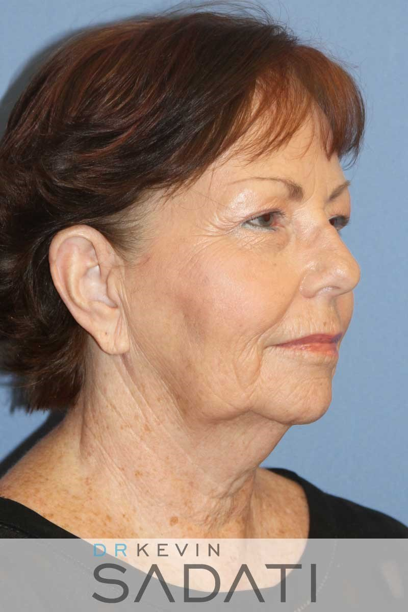Orange County Female Facelift Before