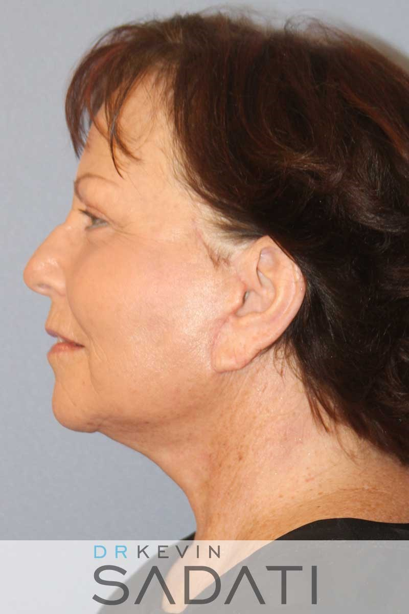 Orange County Female Facelift After