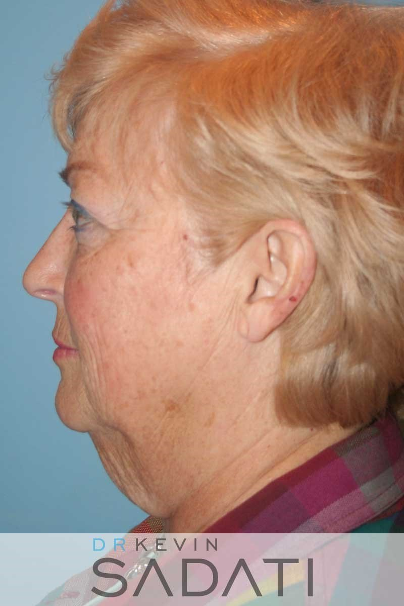 Facelift and Neck Lift - Left Before
