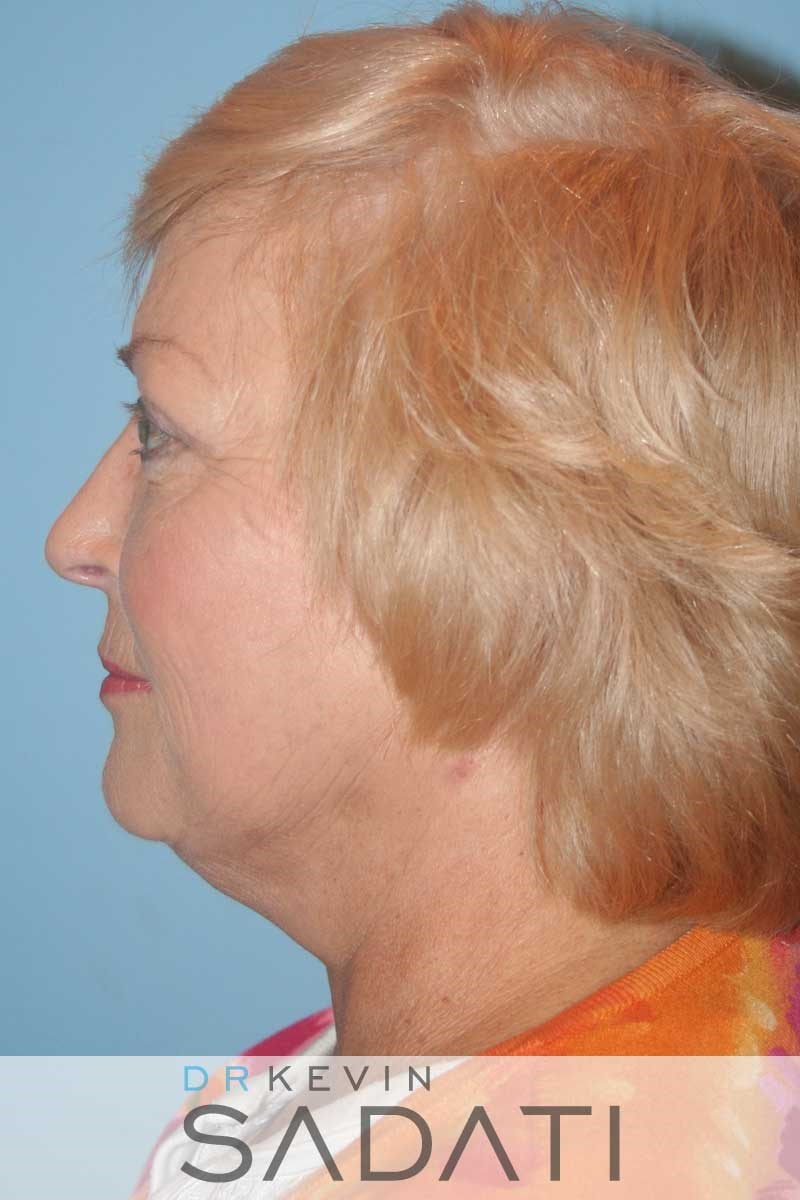 Facelift and Neck Lift - Left After