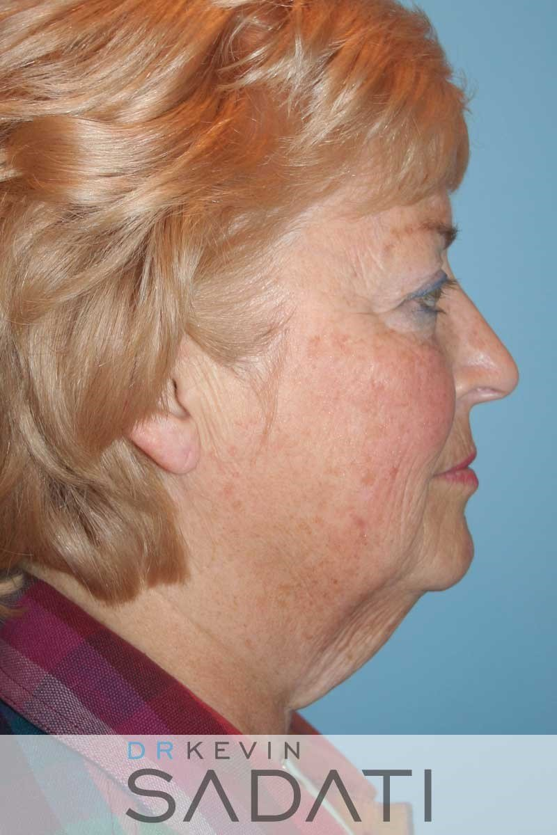 Facelift and Neck Lift - Right Before