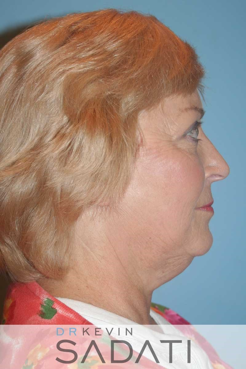 Facelift and Neck Lift - Right After