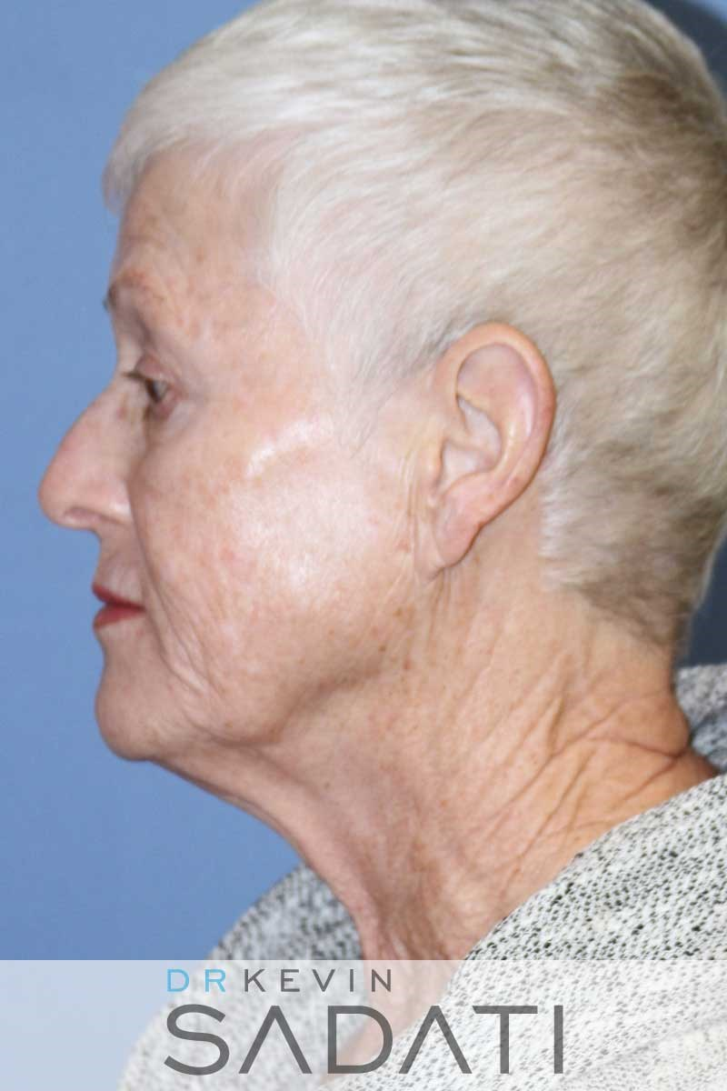 Female Facelift Left View Before