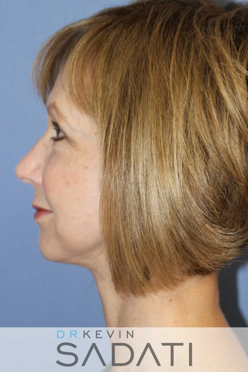 Facelift Procedure Results After