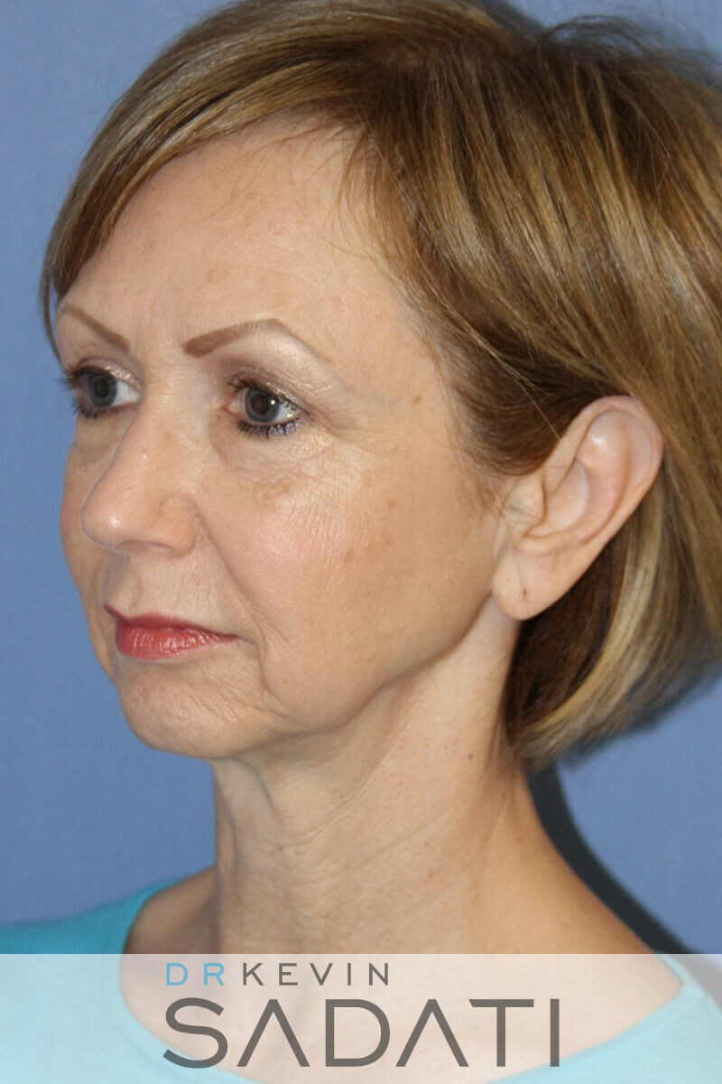 Facelift Procedure Results Before