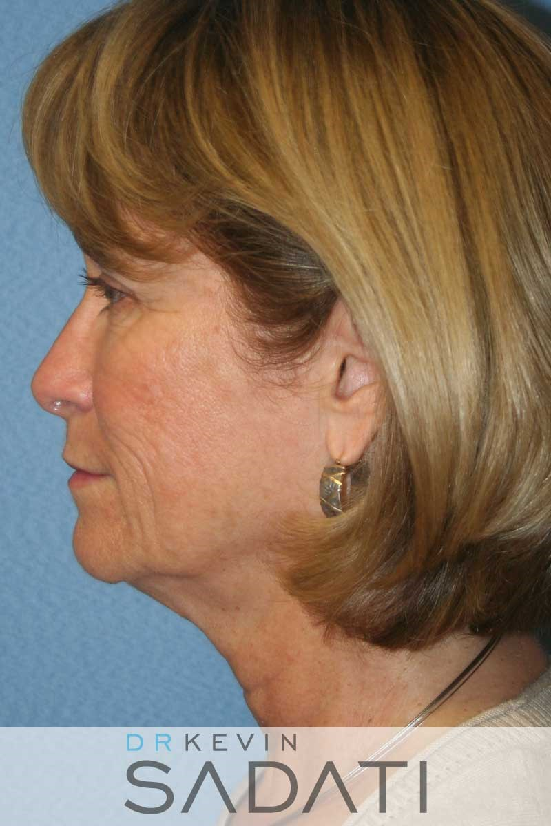 Facelift Surgery - Left View Before