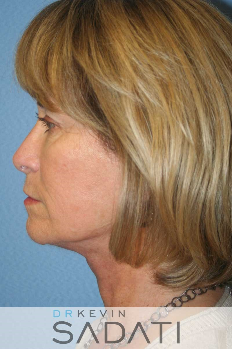 Facelift Surgery - Left View After