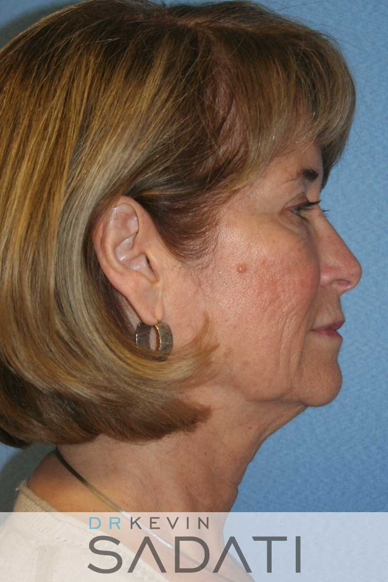 Facelift Surgery - Right View Before