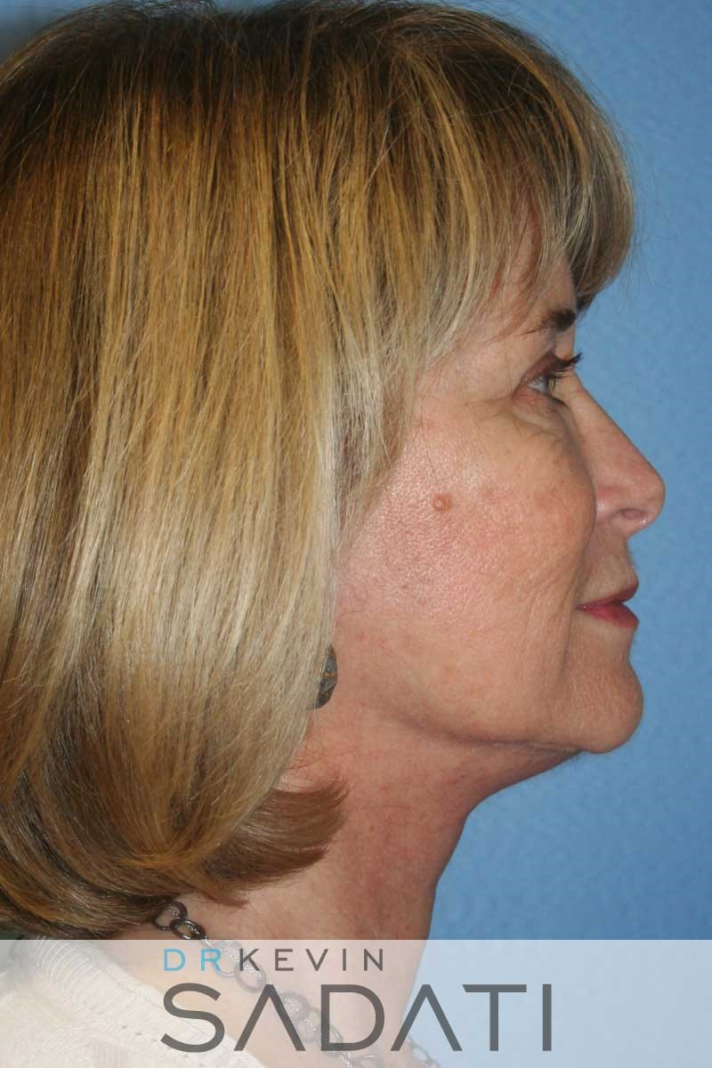 Facelift Surgery - Right View After
