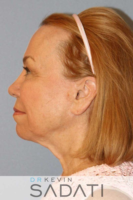 Revision Facelift Results Before Revision Facelift