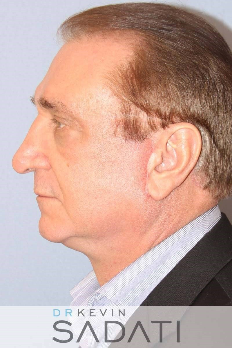 Male Facelift Newport Beach After