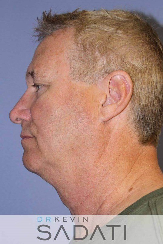 Facelift for Men Before