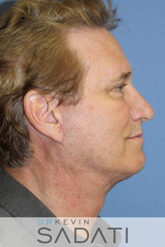 Facelift for Men After