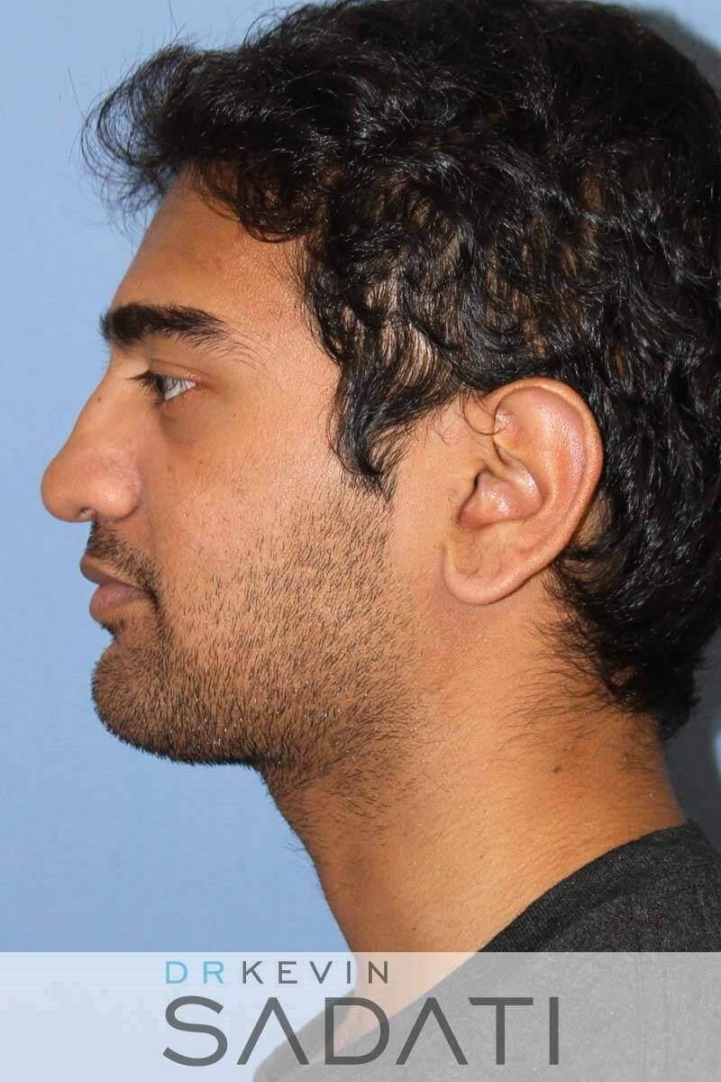 Male Rhinoplasty - Left View Before