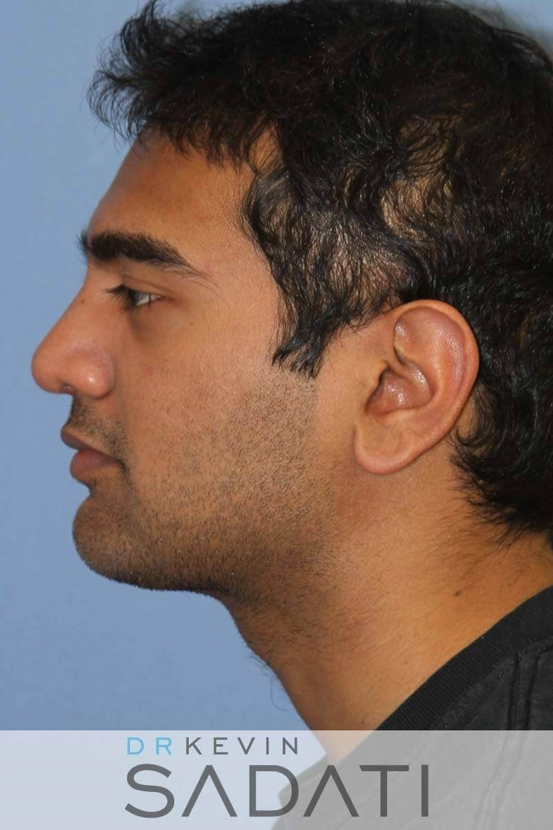 Male Rhinoplasty - Left View After