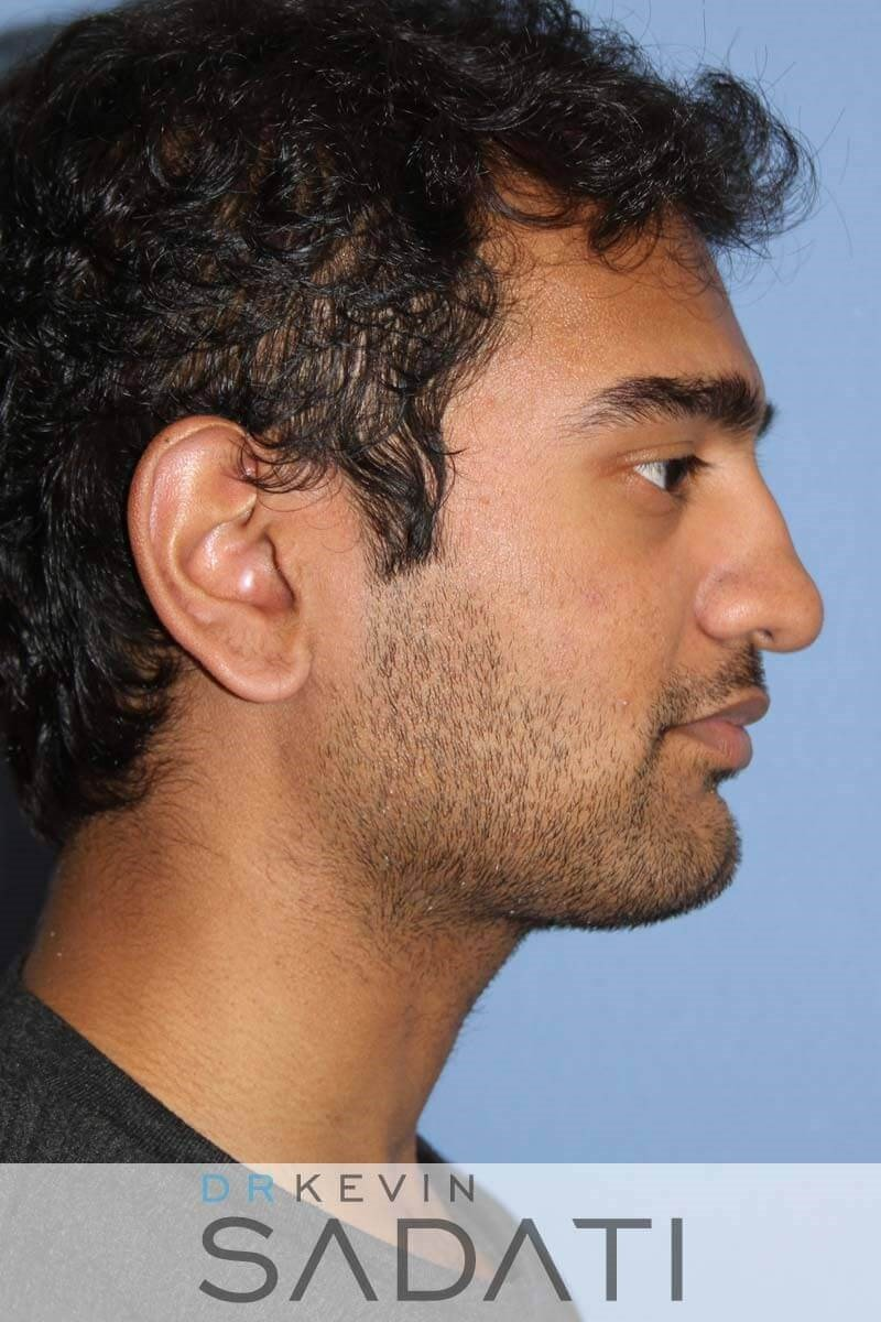 Male Rhinoplasty - Right View Before