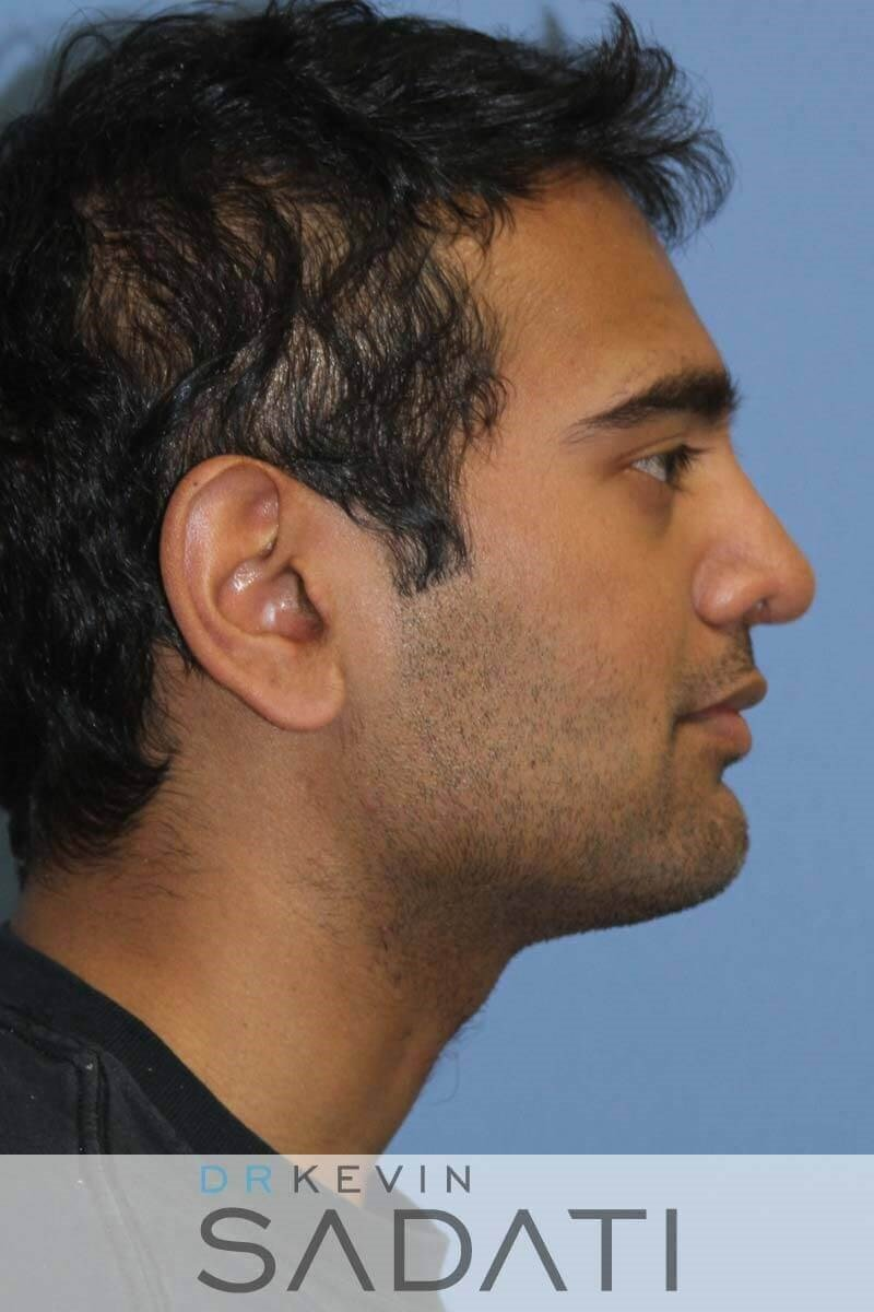 Male Rhinoplasty - Right View After