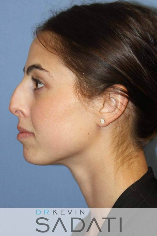 Female Rhinoplasty - Left Before