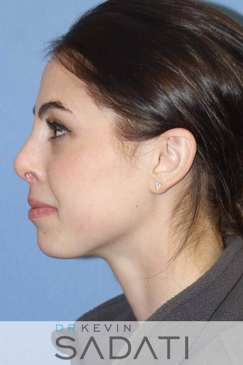 Female Rhinoplasty - Left After
