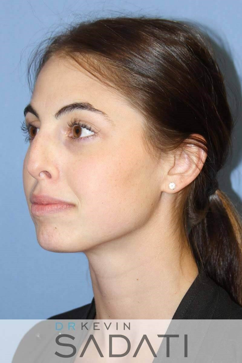 Female Rhinoplasty - Oblique Before