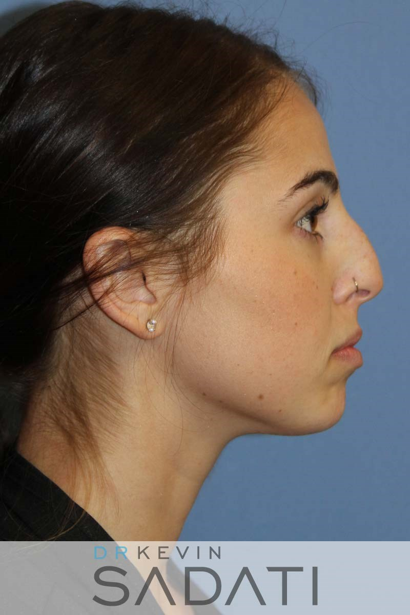Female Rhinoplasty - Right Before