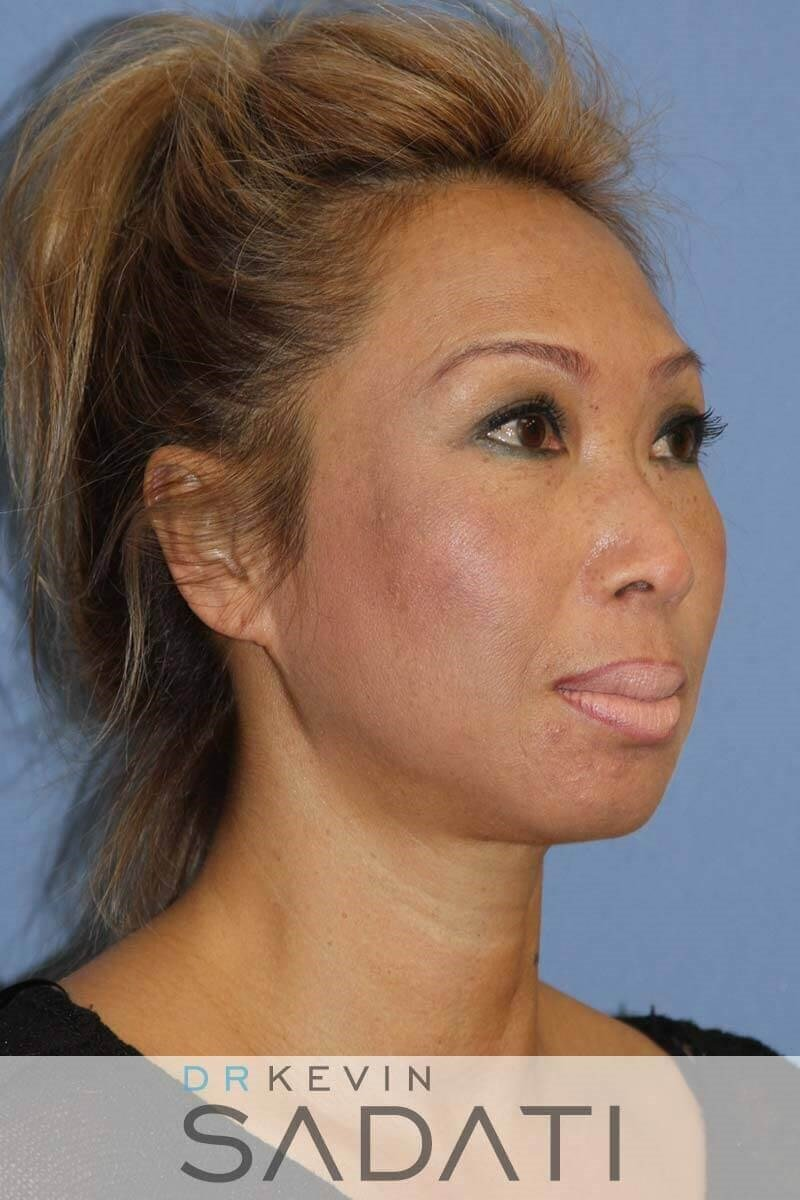Septo-Rhinoplasty Procedure Before