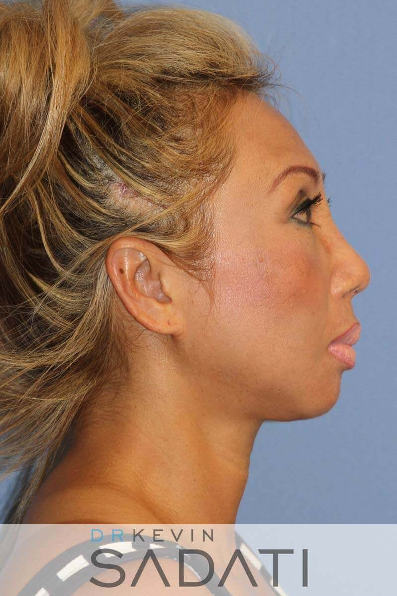 Septo-Rhinoplasty Procedure After