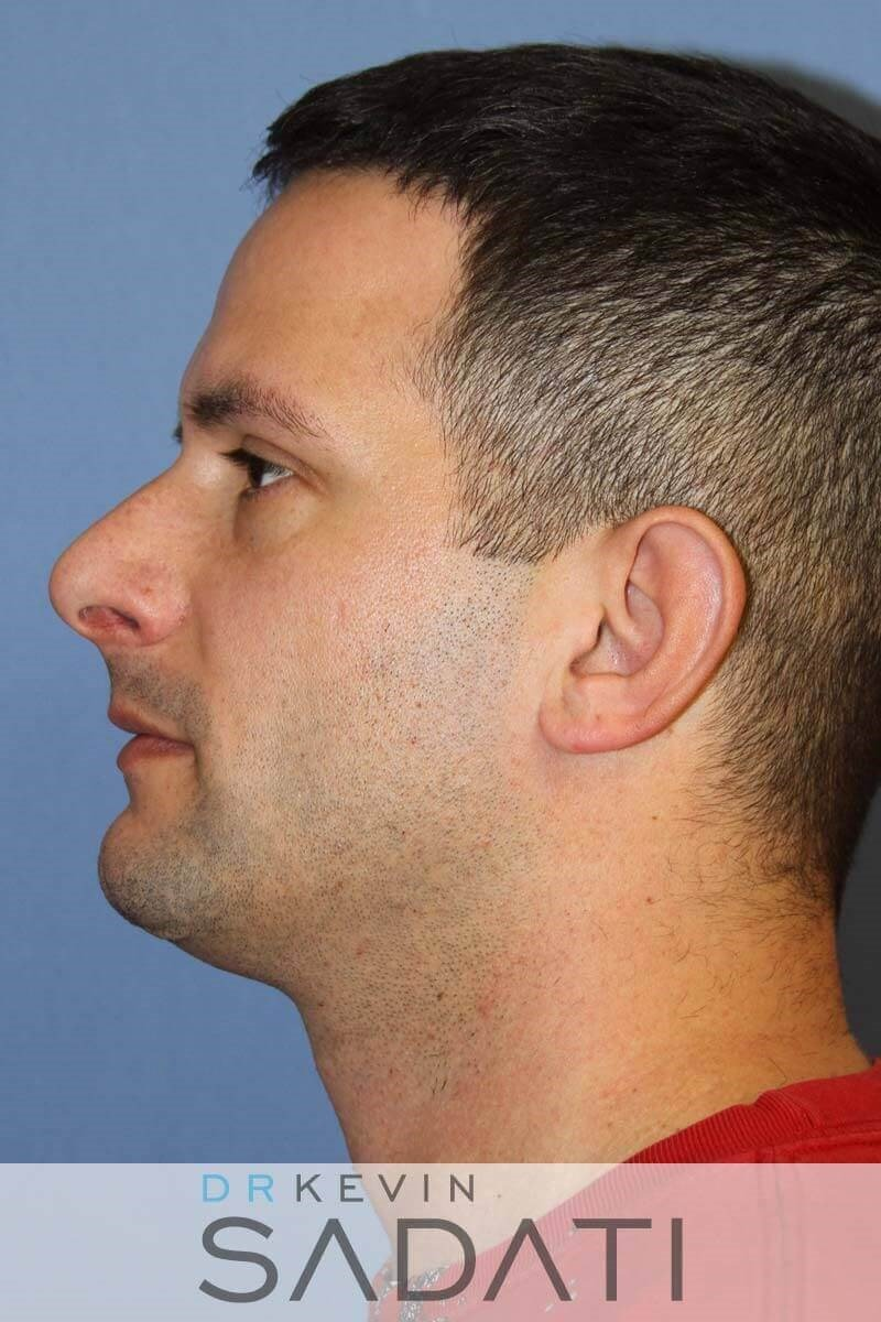 Male Septo-Rhinoplasty Before