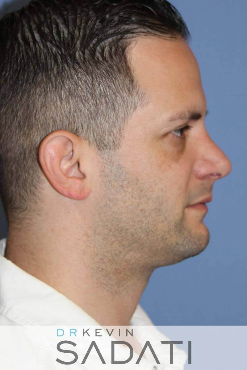Male Septo-Rhinoplasty After
